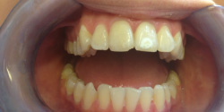 Before Tooth Whitening treatment